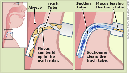 Suctioning A Trach Home Tracheostomy Care A Resource For